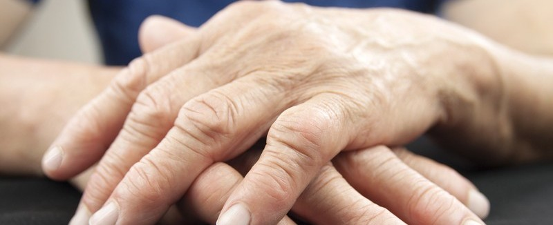 http://www.dreamstime.com/royalty-free-stock-photo-rheumatoid-arthritis-hands-hand-woman-deformed-image41407135